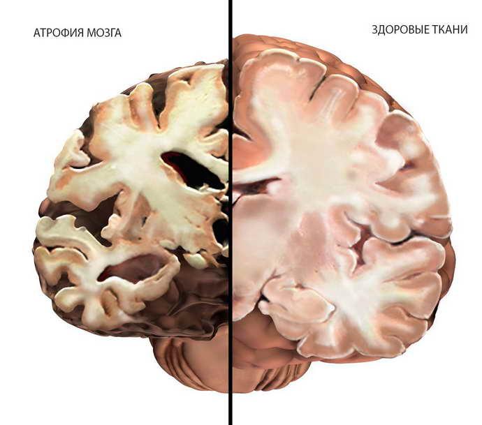 Атрофия мозга у детей лечение