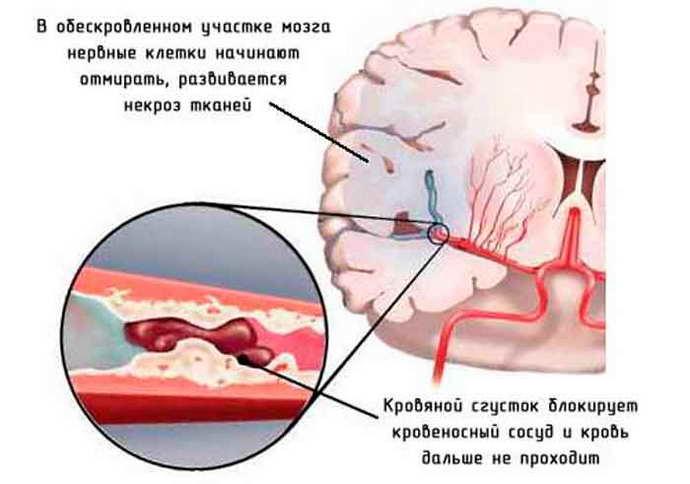 Атрофия мозжечка причины