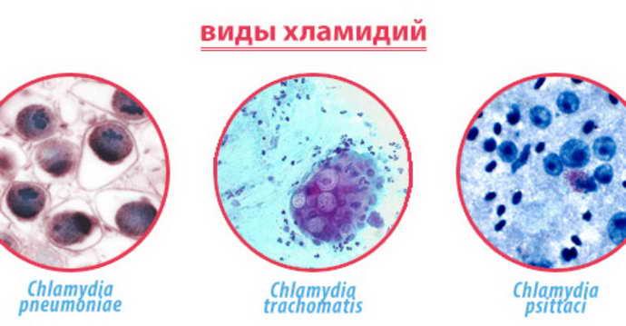 бактериальный менингит вирус