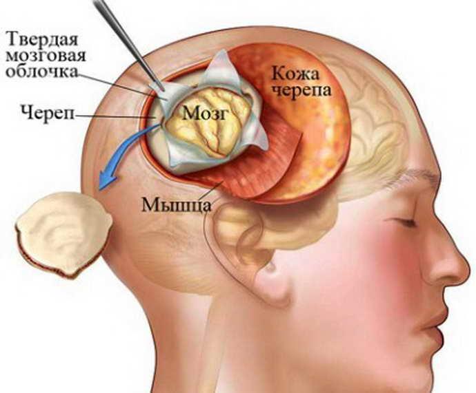 Открытый способ биопсии мозга
