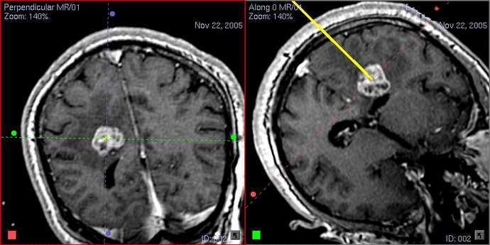 Биопсия мозга показания