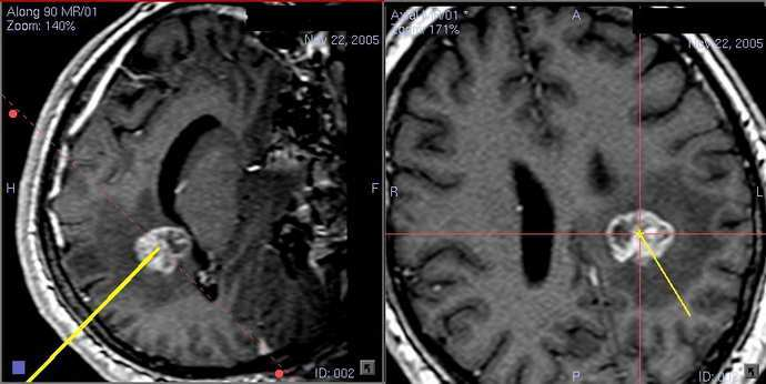 биопсия мозга правила выполнения