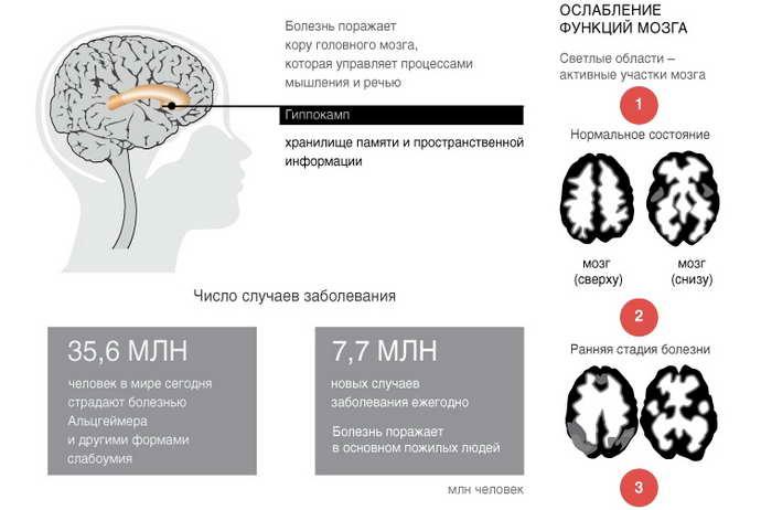 Клинические проявления и стадии заболевания