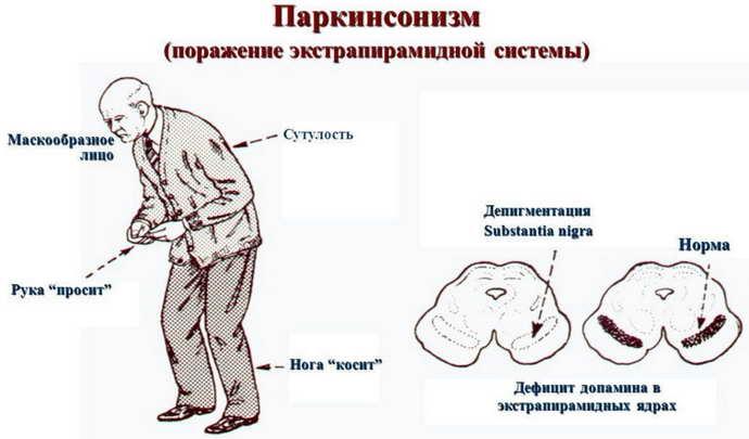 Болезнь Паркинсон