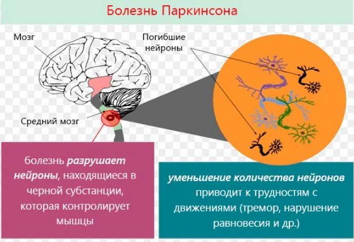 паркинсона болезнь