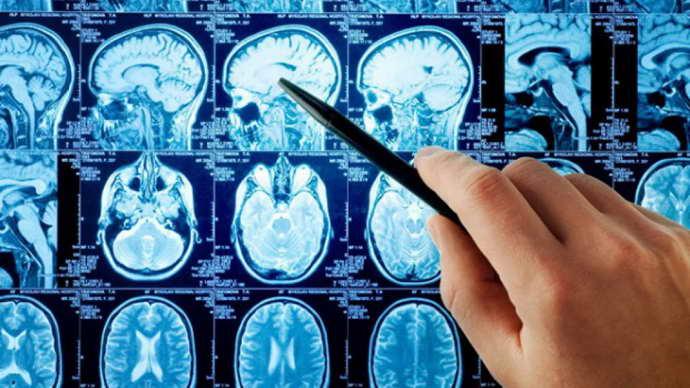 Заключение, подтверждающее болезнь Паркинсона