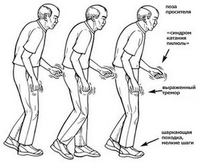 Развитие синдрома Паркинсона
