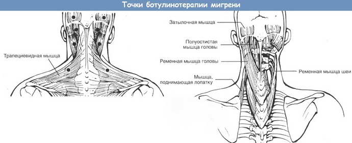 Действие ботулотоксина при мигрени