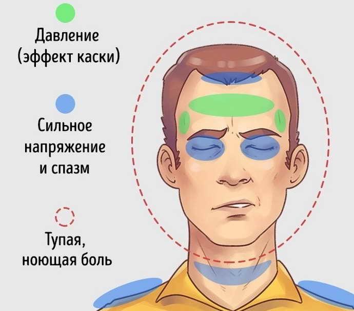 Особенности боли напряжения