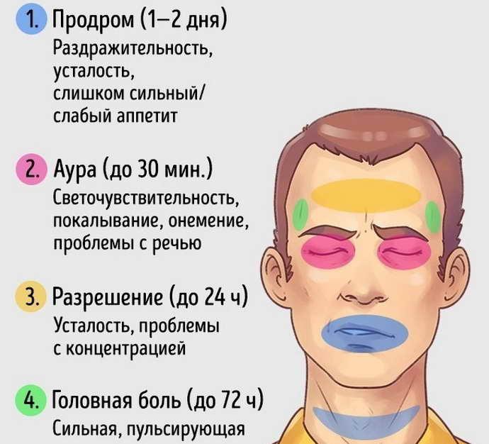 формы мигрени