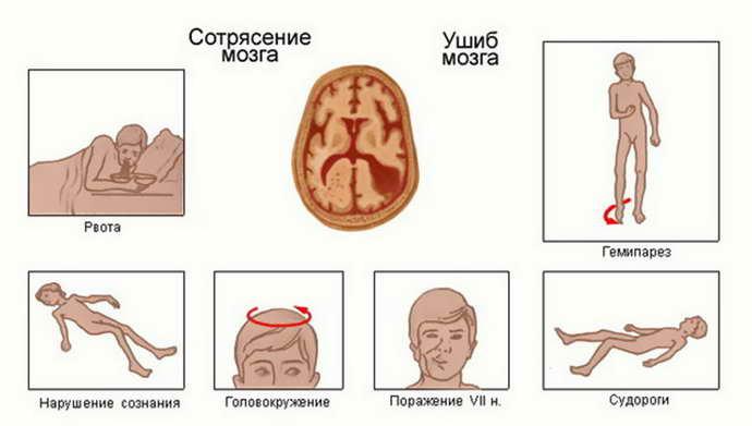 Среднее сотрясение мозга