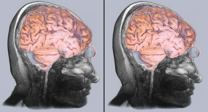 демиелинизирующее заболевание головного мозга диагностика