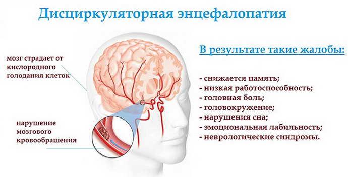 главные причины дисциркуляторной энцефалопатии