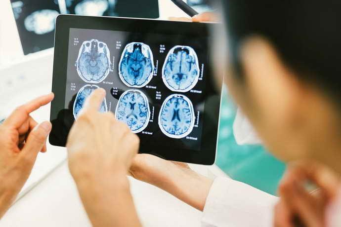 Диагностика дисциркуляторная энцефалопатия