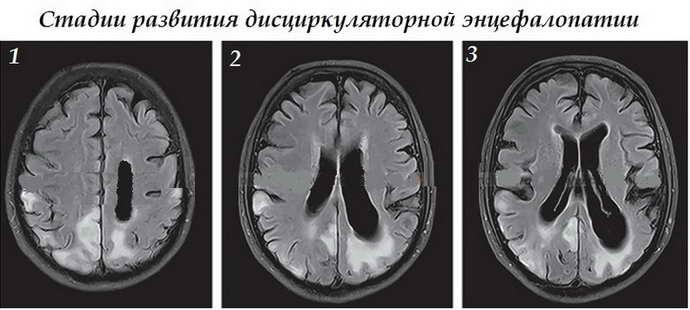 Дисциркуляторная энцефалопатия 2 степени