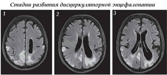 Дисциркуляционная энцефалопатия делится на стадии