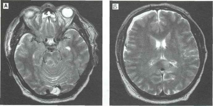 Пароксизм во время ЭЭГ головы
