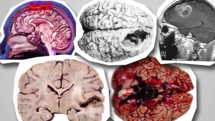 когда проводят ээг головного мозга