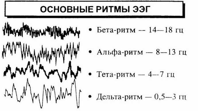 Ночная ЭЭГ головного мозга