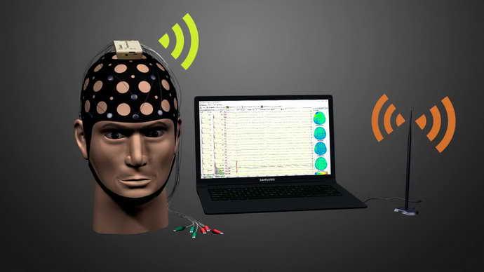 ЭЭГ головного мозга используют при мониторном наблюдении