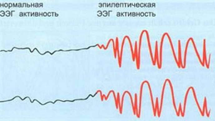 Расшифровка результатов ээг мозга