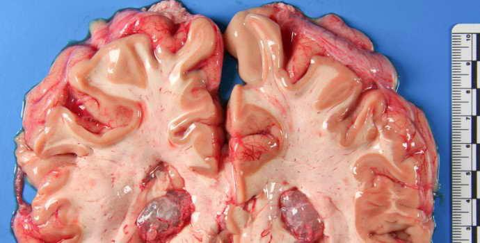 Симптомы эхинококкоза головного мозга