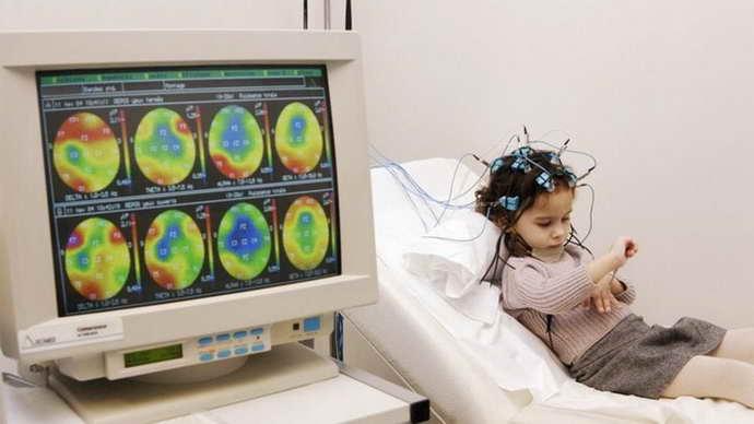 Эхоэнцефалография головного мозга что это