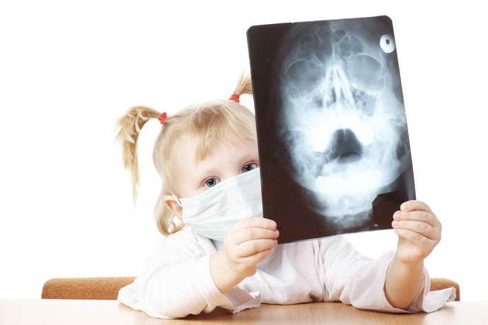 Рентген мозга у детей