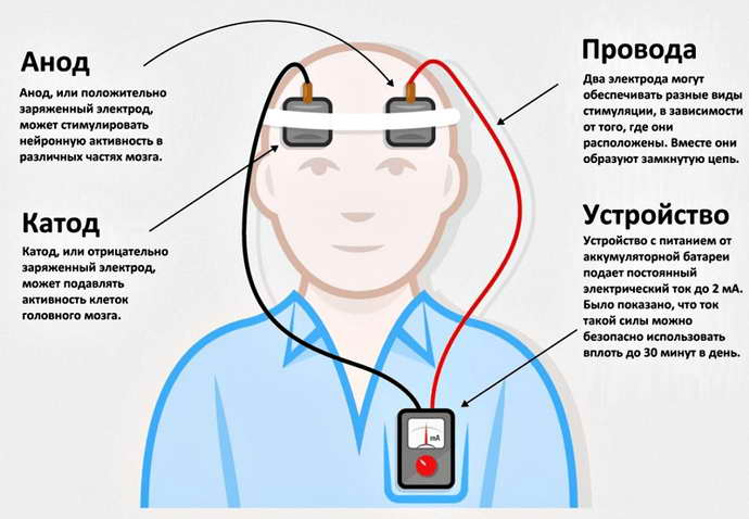Электростимулятор при болезни Паркинсона особенности