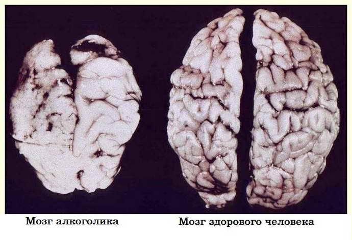 Деменция появляется при прогрессирующей лейкоэнцефалопатии