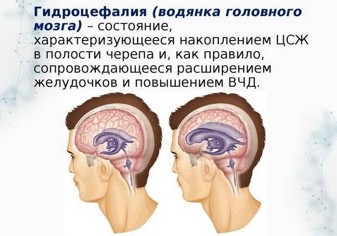 эпилептическая энцефалопатия последствия