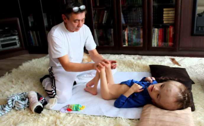 Гидроцефалия головного мозга у новорождённых