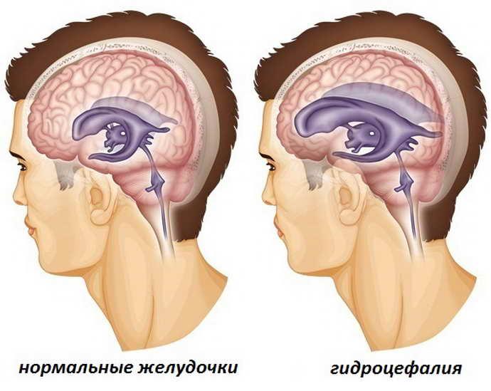 Закрытая гидроцефалия