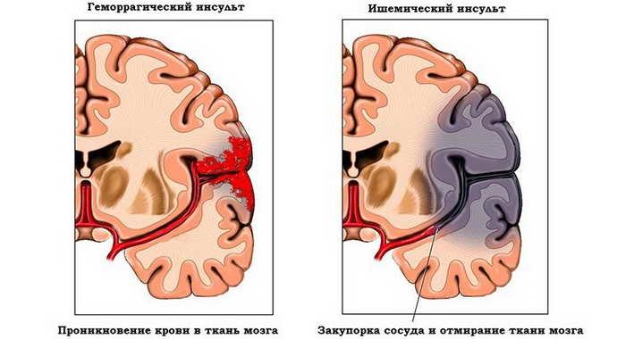 Открытая наружная гидроцефалия