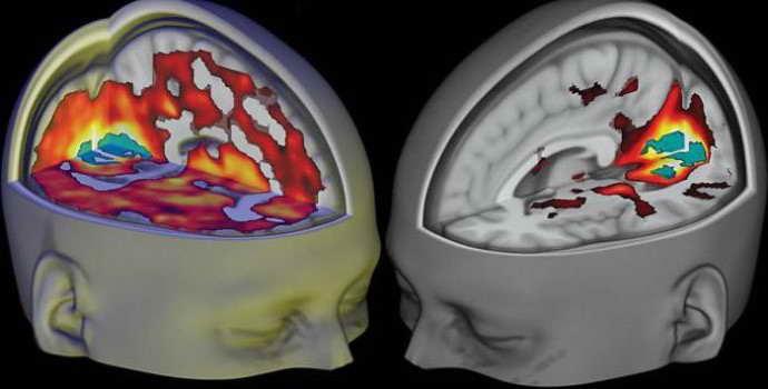 Гигрома головного мозга: причины, симптомы, лечение