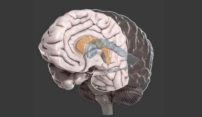 Гипоплазия мозолистого тела у детей