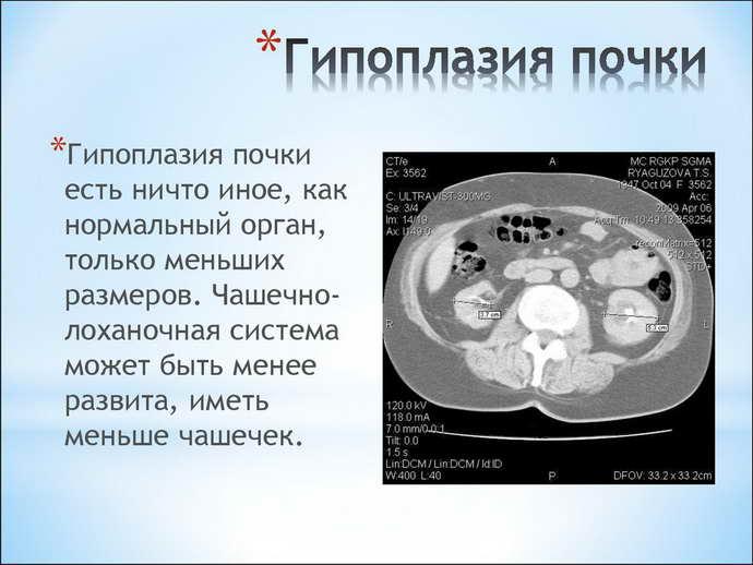 гипоплазия почки у детей