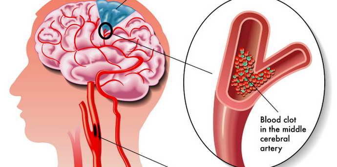 гипоплазия головного мозга