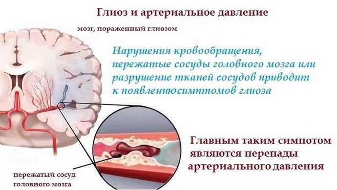 развиваетсяглиоз белого вещества головного мозга