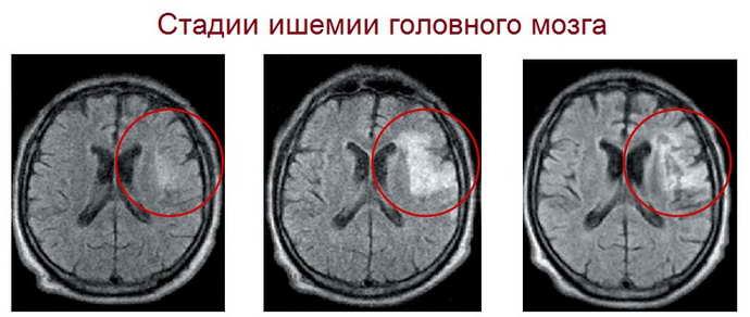 что такое ишемия головного мозга