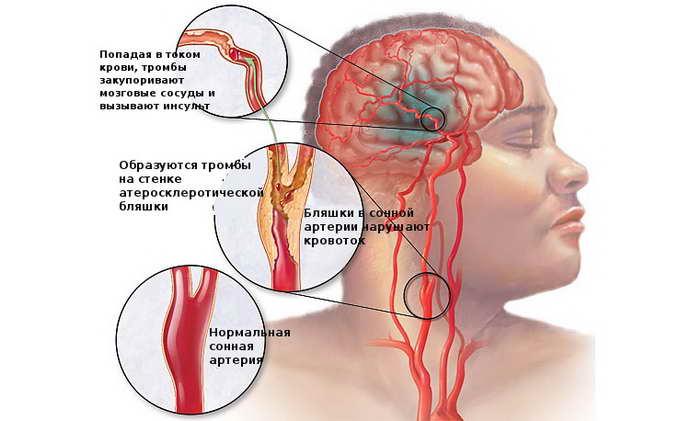 Ишемия головного мозга 2 степени