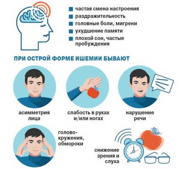 Ишемическую болезнь мозга провоцируют разные негативные факторы