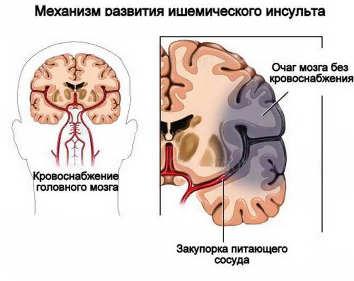 острое гипоксическое поражение мозга