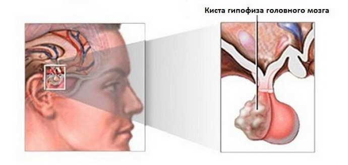 киста головного мозга может проходить без ярких симптомов