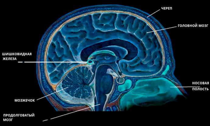 Киста шишковидной железы головного мозга