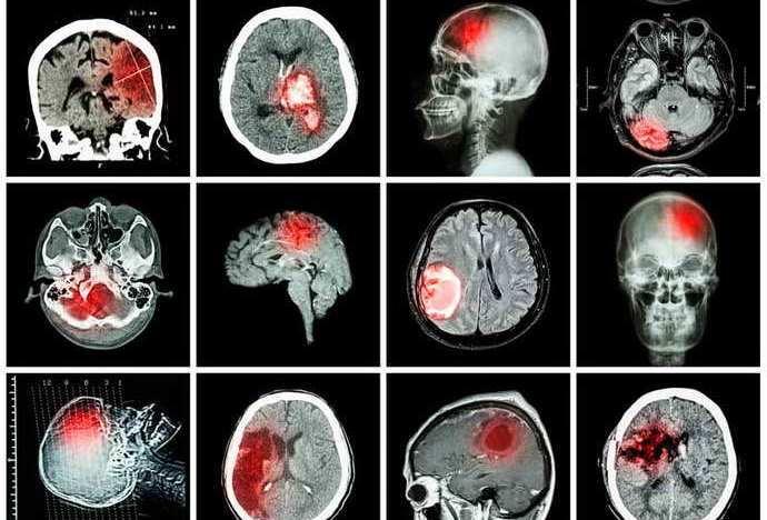 КТ головного мозга помогает получить различную информацию