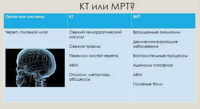 кт или мрт головного мозга
