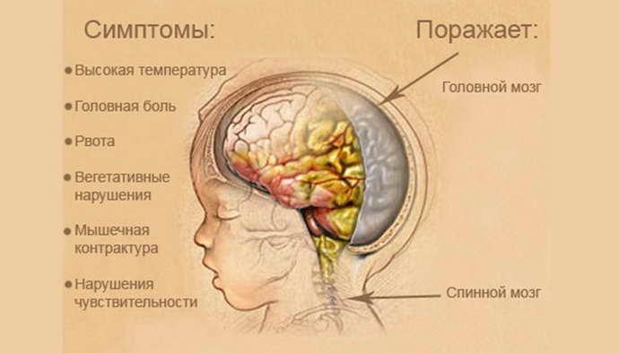 Спинномозговая пункция при туберкулезном менингите thumbnail