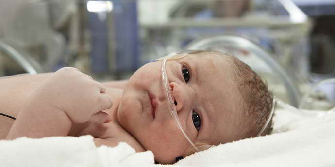 лопнул сосуд в голове у новорожденного