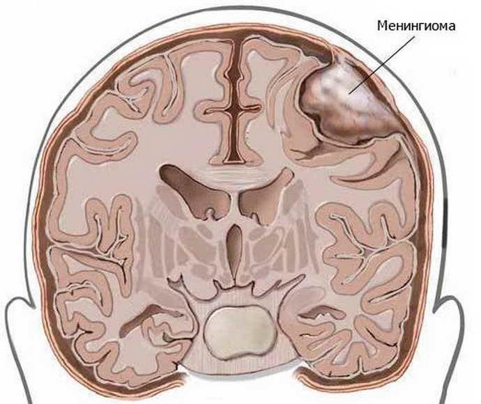 Причины возникновения менингиом